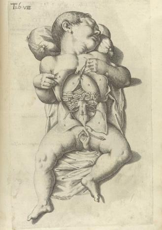 Anatomía de tórax y abdomen de una recién nacida. Lámina del siglo XVII